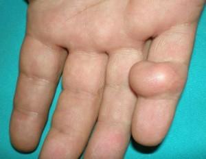 Hand Cyst