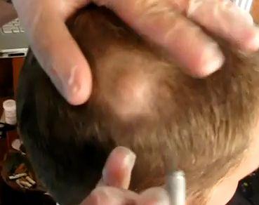 head cyst